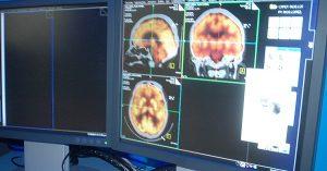 La esclerosis múltiple no tiene cura, pero puede ser tratada