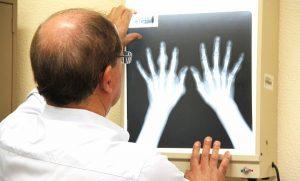 Arranca campaña de cirugía de manos gratuita en Campeche