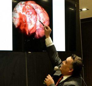 Especialistas del HJM en CDMX operan con éxito tumor gigante intercraneal