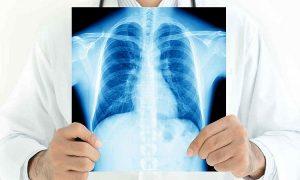 Tuberculosis, una enfermedad antigua