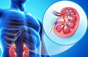 Insuficiencia renal crónica, padecimiento silencioso con causa de muerte: Médico