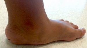 Sabes cómo detectar el pie plano