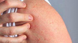 Dermatitis atópica puede afectar rendimiento laboral: Especialista