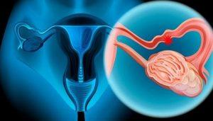 Estos son los síntomas de cáncer de ovario que las mujeres podrían estar ignorando