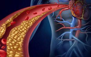 Recomendaciones para mantener bajos los niveles de colesterol