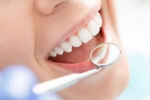 Mexicanos van a dentista hasta que sienten dolor intenso: Especialista