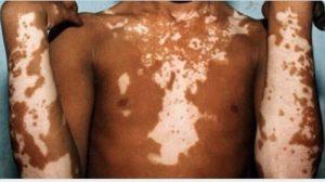 Sabes qué es y cómo se produce el vitiligo