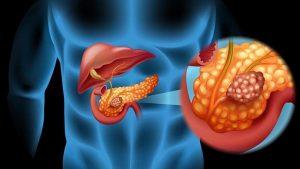 Científicos descubren inmunoterapia para cáncer de ovario y páncreas