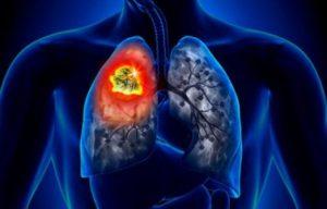 Descubren compuesto para tratar cáncer de pulmón
