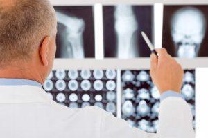 Esto es lo que debes saber acerca de la osteoporosis