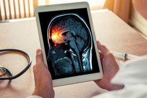 Día Mundial de la Meningitis; infección que ataca el cerebro y la médula espinal