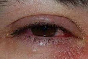 Advierten que conjutivitis también es síntoma inicial de COVID-19