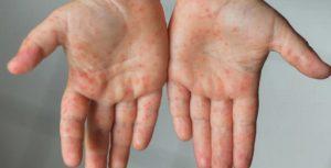 ¿Qué es el síndrome de Kawasaki que afecta a niños?¿Tiene relación con el COVID-19?