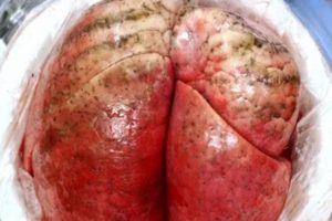 Científicos logran recuperar pulmón dañado en menos de 24 horas