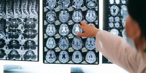 COVID-19 podría ocultarse en el cerebro y provocar la muerte: Estudio